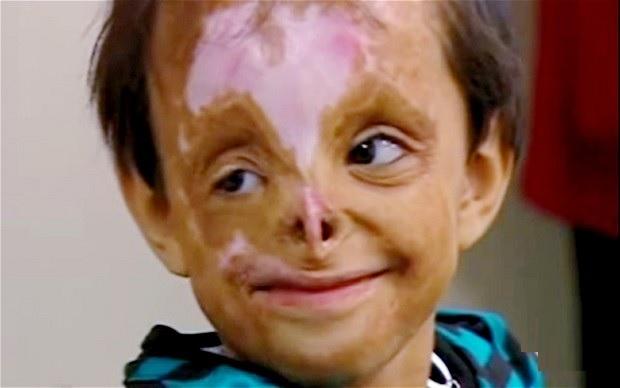 deformed face kid - 620×388