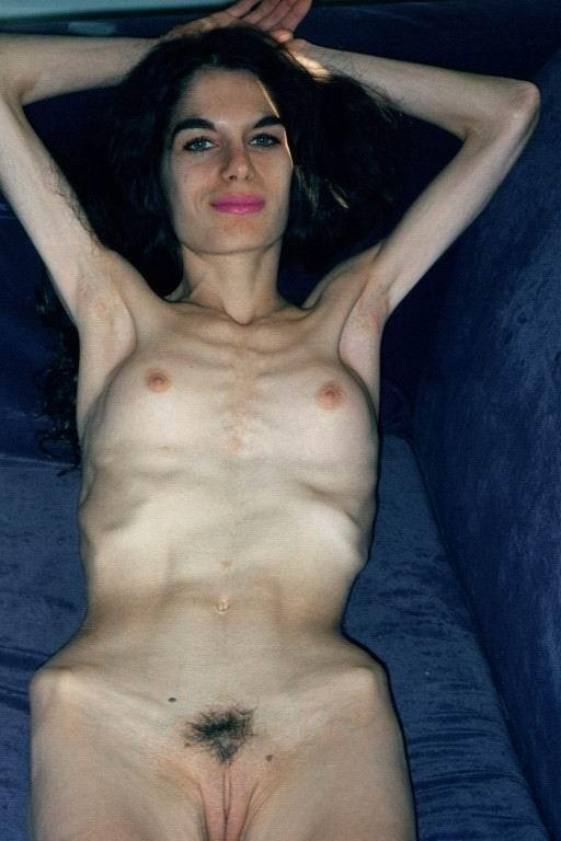 golie-anoreksichki-video