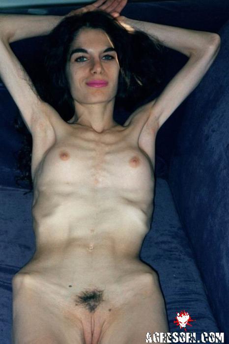 Анорексия фото голые